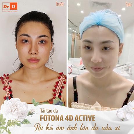 Tái tạo da bằng fotona 4d có hiệu quả không 2