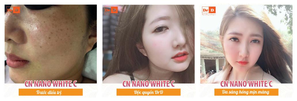 Nano-white-c-3